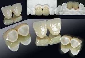 Wholesale dental zirconia materials: All Ceramic