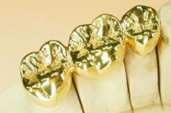 Dental Restoration Full Gold Metal Crown And Bridge Id