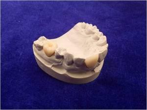 Wholesale Other Dental Supplies: Zirconia Porcelain