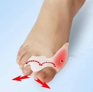Wholesale Toe Separator: Bunion Guard Bunion Protecor Toe Separator