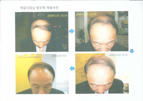 Hair loss growth complete solution - Easy hair care solutions ...