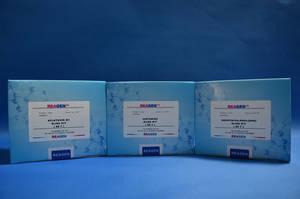 Wholesale plasma: Terbutaline ELISA Test Kit