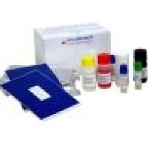 Wholesale marker equipment: Hav-Igm Elisa Test