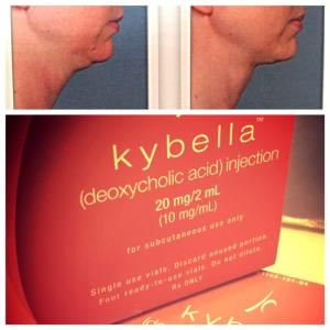 Wholesale kybella: Deoxycholic Acid,Belkyra,Kybella,Celluform Plus