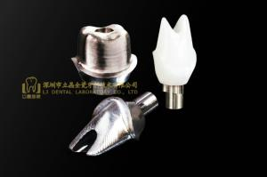 Wholesale dental implant: Dental Implant Abutment, Implant Crown, Implant Prothesis, Laboratoire Dentaire, Dentallabor, Dental