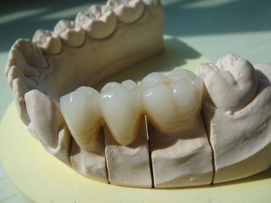 Zirconia All Ceramic Dental Crown And Bridge Id 5406307
